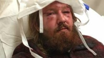 Trump Supporter Viciously Attacked In Boston By Antifa Terrorists